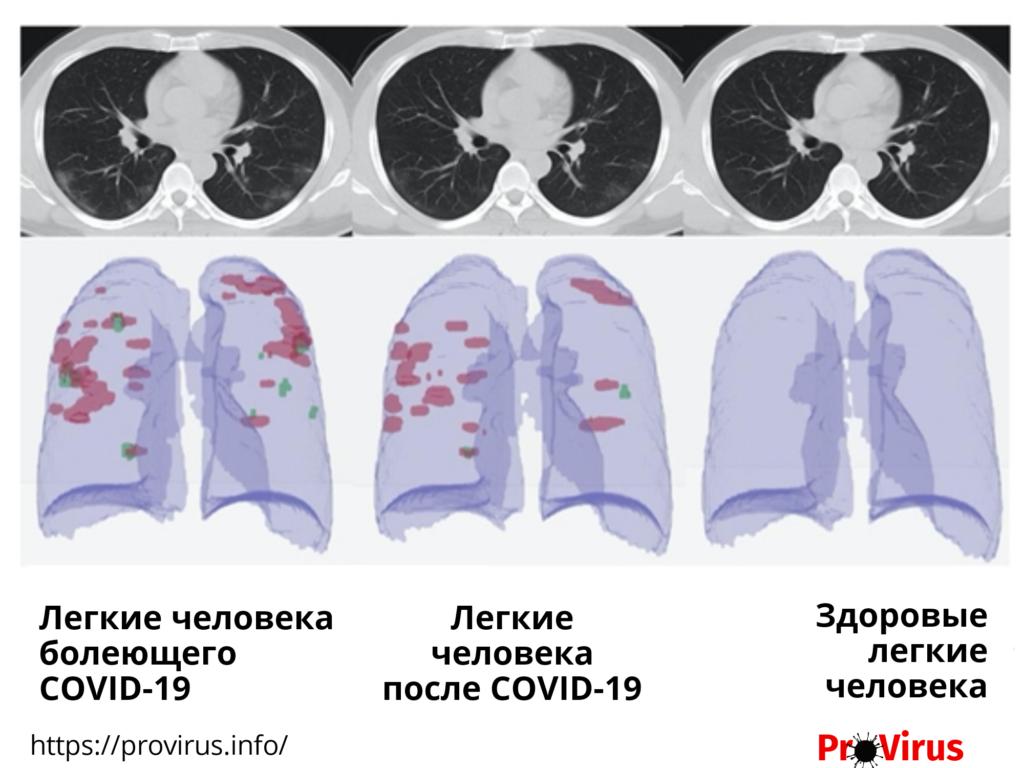 Поврежждения легких при коронавируса