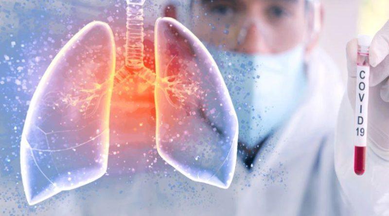 ПЦР тест на коронавирус, ответы на популярные вопросы.